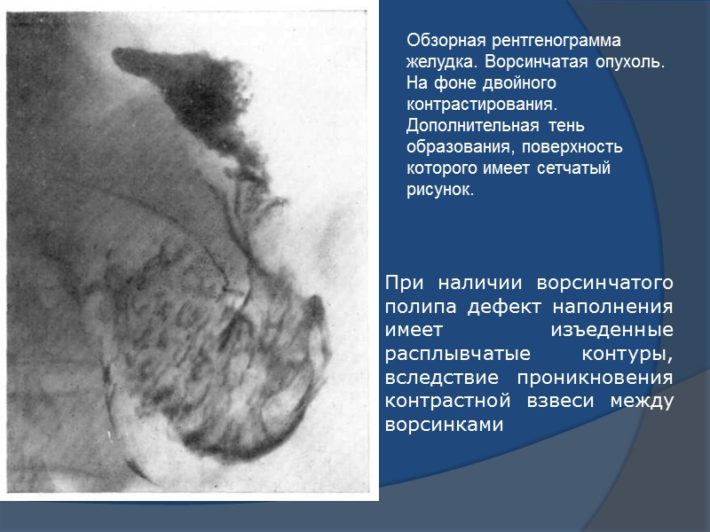 Классификация полипов.   солитарные и множественные;  2) крупные, мелкие и смешанные;