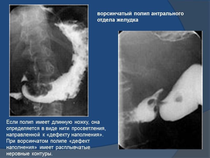 Основным рентгенологическим симптомом полипа является «дефект наполнения» округлой или овальной формы с четкими ровными