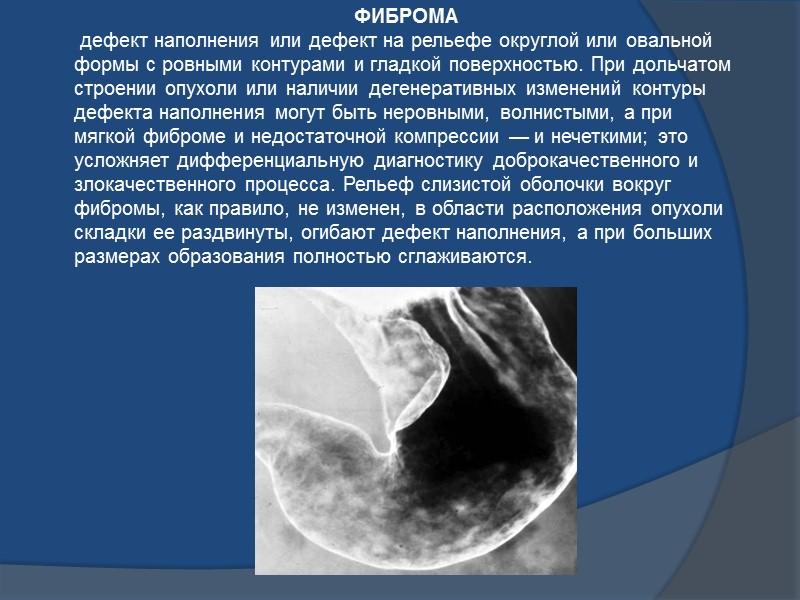 при наличии множественного полипоза видны множественные дефекты наполнения различной величины округлой или овальной формы