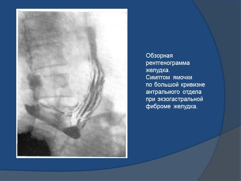 полипоз желудка – видны неконтрастированные округлые участки («дефекты наполнения»)
