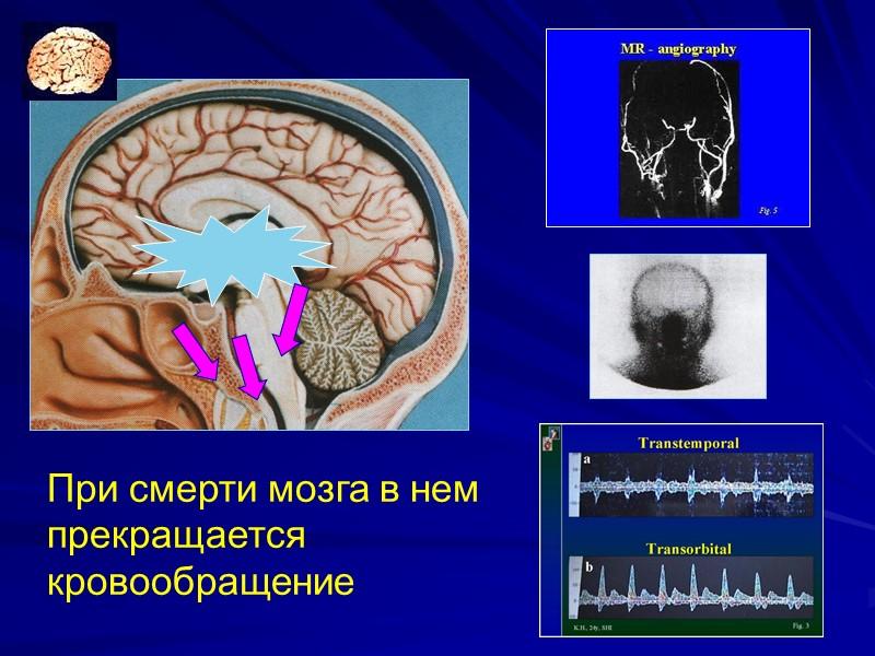 Определение Конституционного Суда РФ  № 459-О от 4.12.2003г