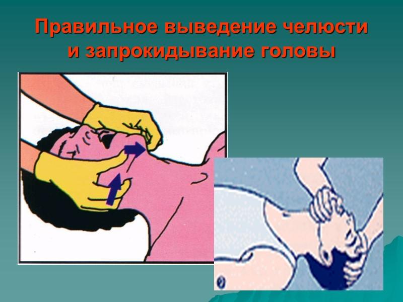 Первая помощь это :  Обеспечение безопасности себе и пострадавшему. Обеспечение физического и психологического