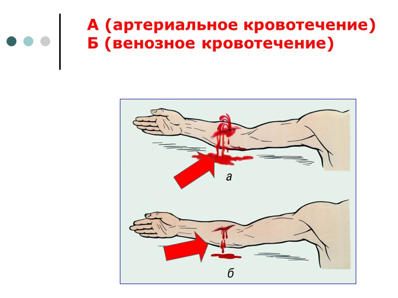 Положение тела человека без сознания на бок: