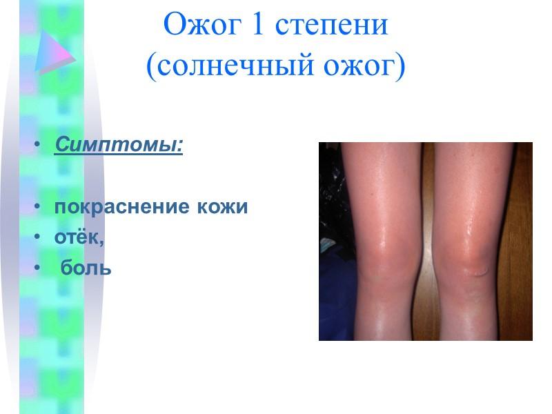 Виды кровотечений  Капилярное (пример: содрал коленку ) Крови мало