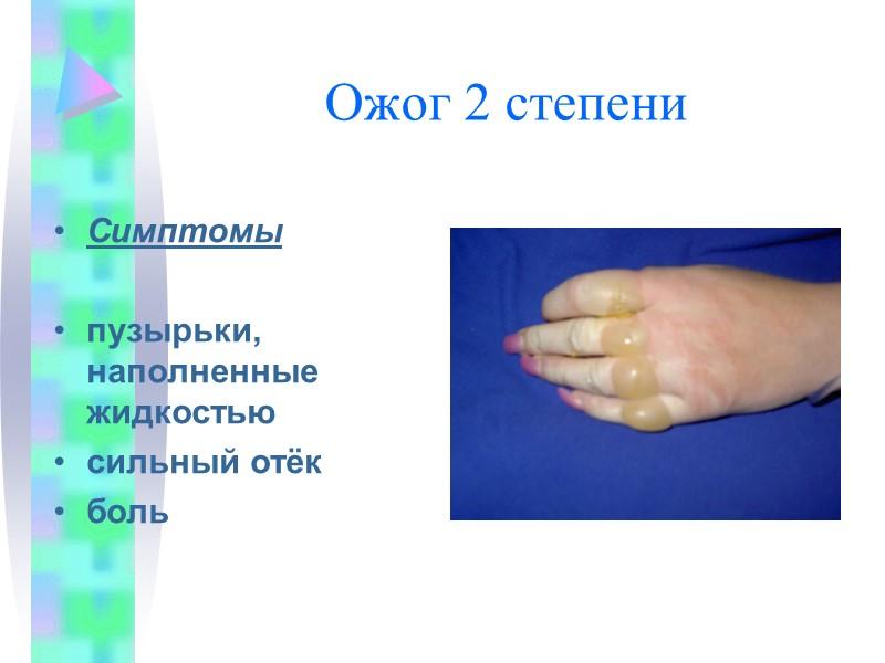 А (артериальное кровотечение) Б (венозное кровотечение)