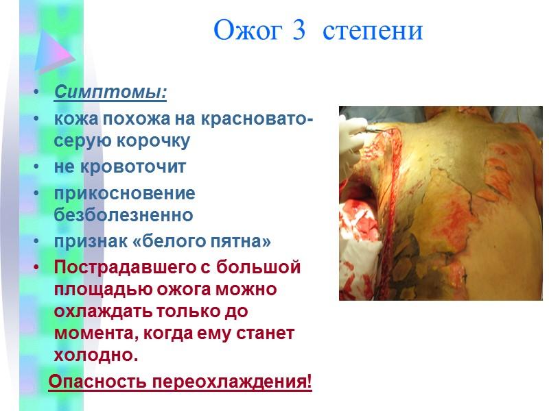 Методы остановки  венозных кровотечений Давящая повязка