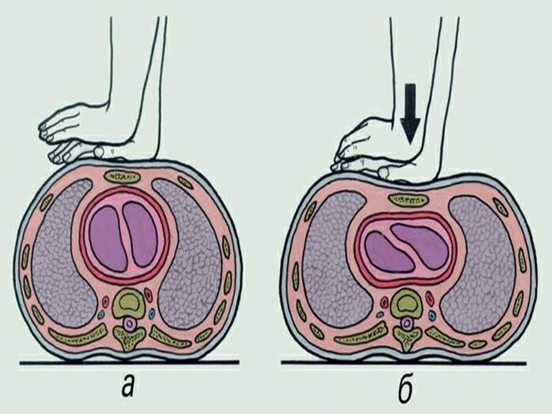 Десмургия – наложение повязок