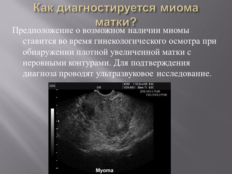Миома матки у беременной 1105