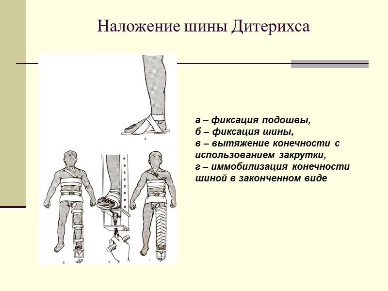 Временная остановка кровотечения методом максимального сгибания конечности