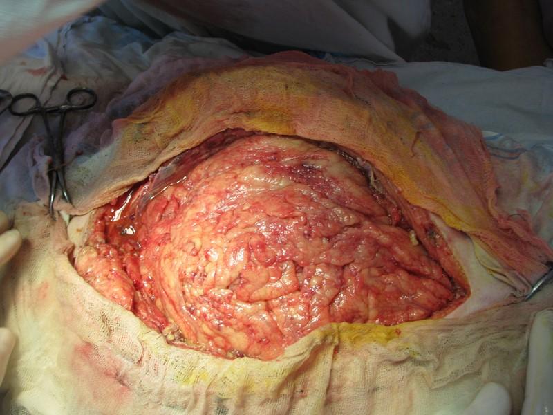 Применение отечественными и зарубежными хирургами метода этапного лечения позволило достоверно снизить летальность у больных