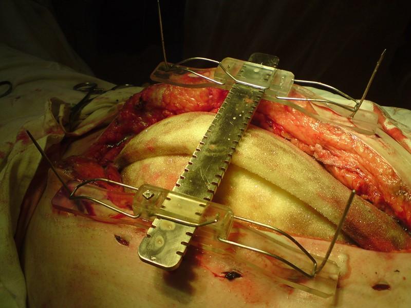 а) края лапаростомы удерживаются и надежно фиксируются в сближенном положении без помощи рук хирурга;