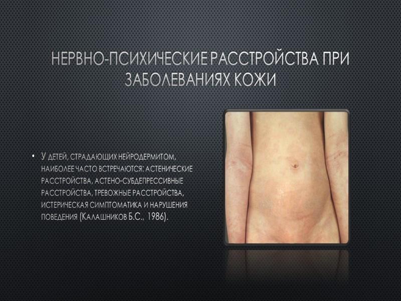 psoriaz-prichina-nervnogo-sriva