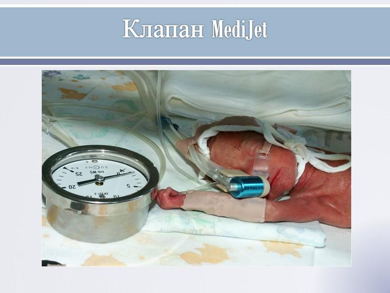 Выводы: -Применение дыхания с NCPAP c первой минуты жизни является безопасным методом  коррекции