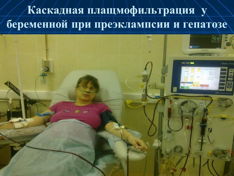 Каскадная плазмофильтрация (двойная фильтрация плазмы, DFPP – забор крови, разделение крови,  фильтрация