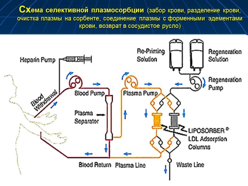 Каскадная плащмофильтрация  у беременной при преэклампсии и гепатозе