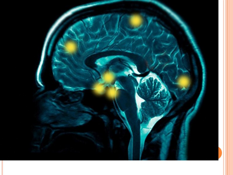 У детей с дизартрией  Выражены нарушения интеллектуальной деятельности в виде низкой умственной работоспособности,