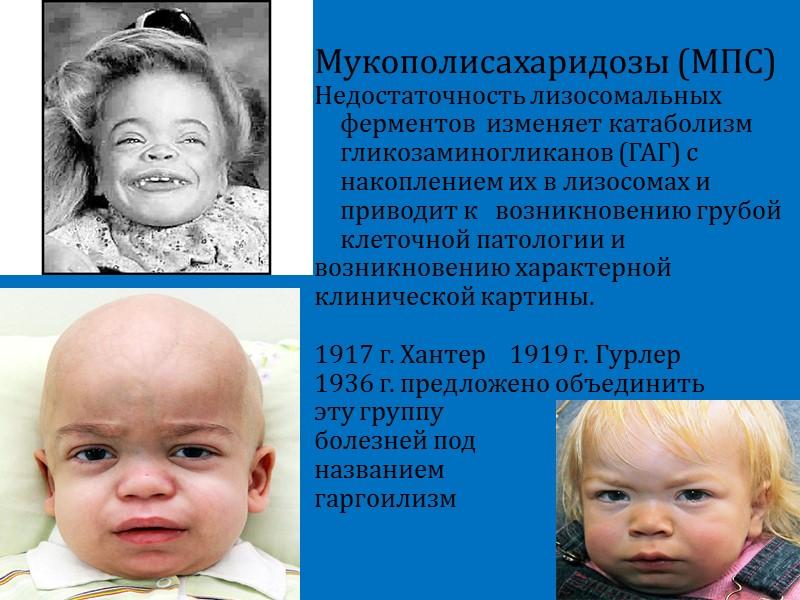 Митохондриальные заболевания