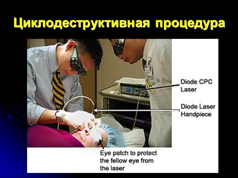 Этапы гипотензивной операции