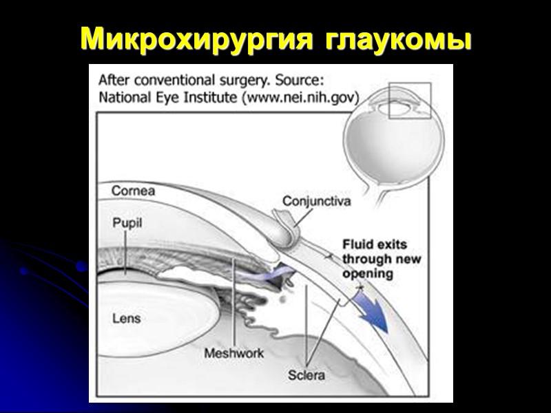 Микрохирургия глаукомы (синустрабекулэктомия)
