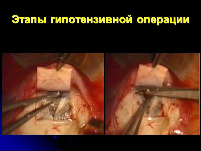 Фильтрационная подушка (итог гипотензивной операции)