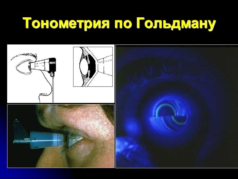 Тонометрия по Гольдману
