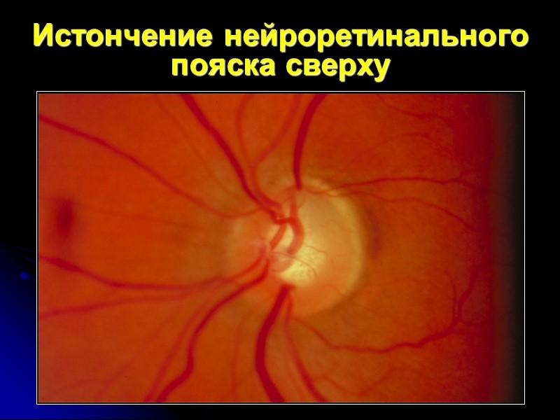Прогрессирование экскавации ДЗН при глаукоме