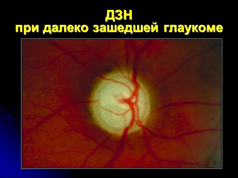 ДЗН при далеко зашедшей глаукоме