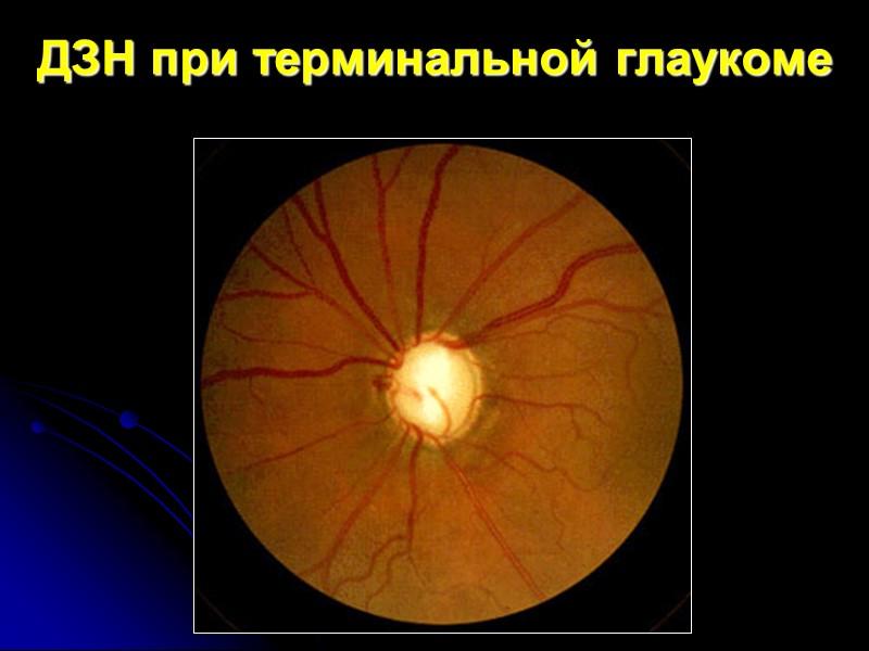 ДЗН при терминальной глаукоме