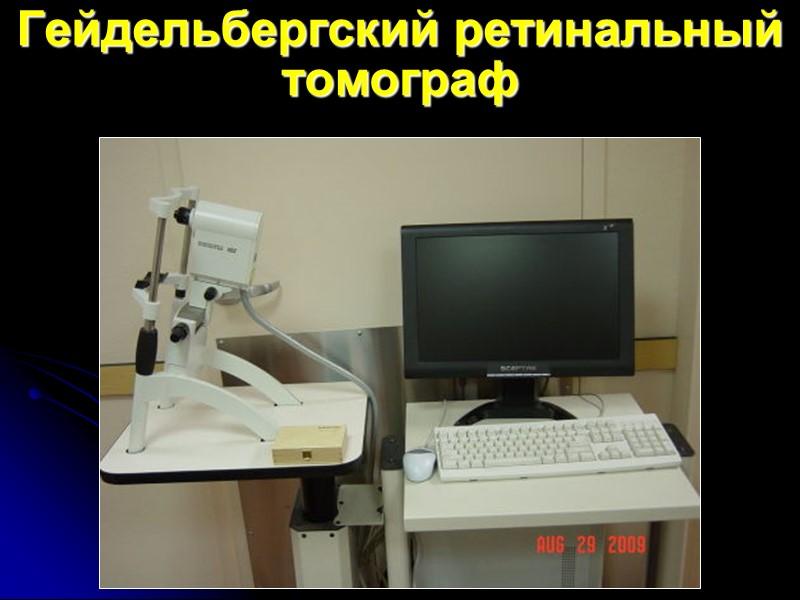 Гейдельбергский ретинальный томограф