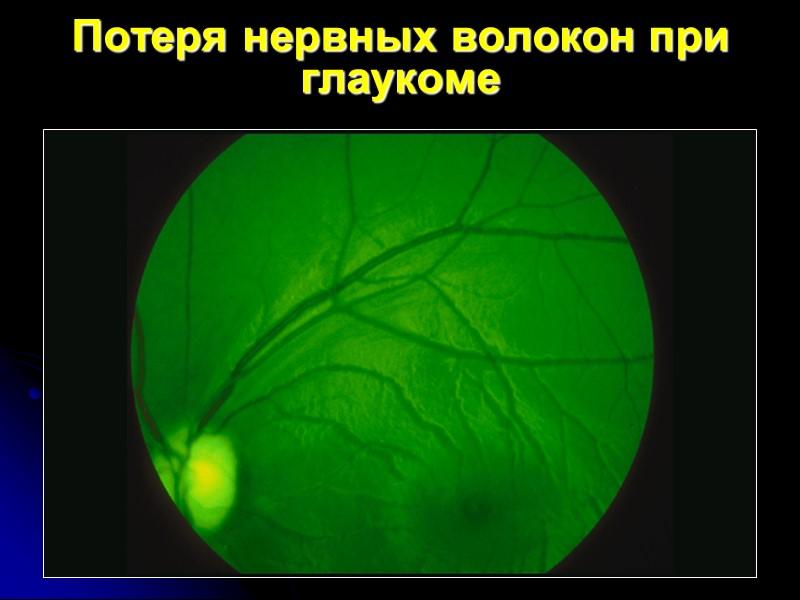 Потеря нервных волокон при глаукоме