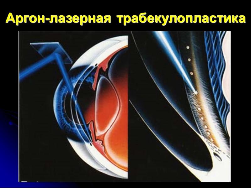 Механическая теория (коагуляционный некроз ткани трабекулы → рубцевание  в проекции лазерных коа-гулятов. Поскольку
