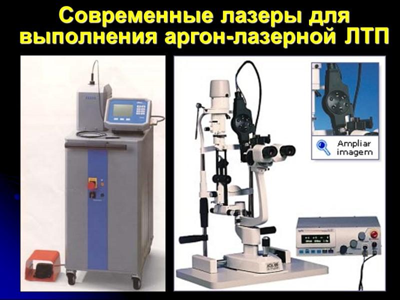 Селективная лазерная трабекулопластика (СЛТ) Mark A. Latina с соавт. (1995-1996 гг).  «Coherent Selecta
