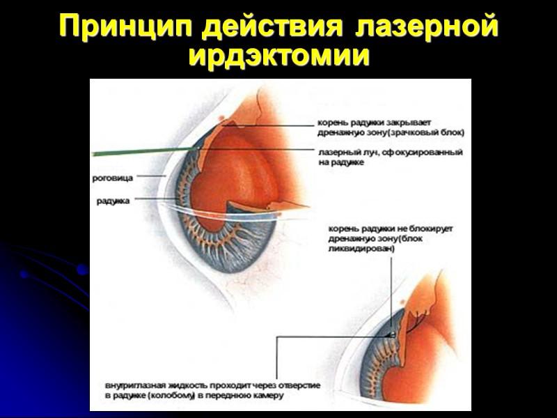 Колобома радужки после лазерной иридэктомии