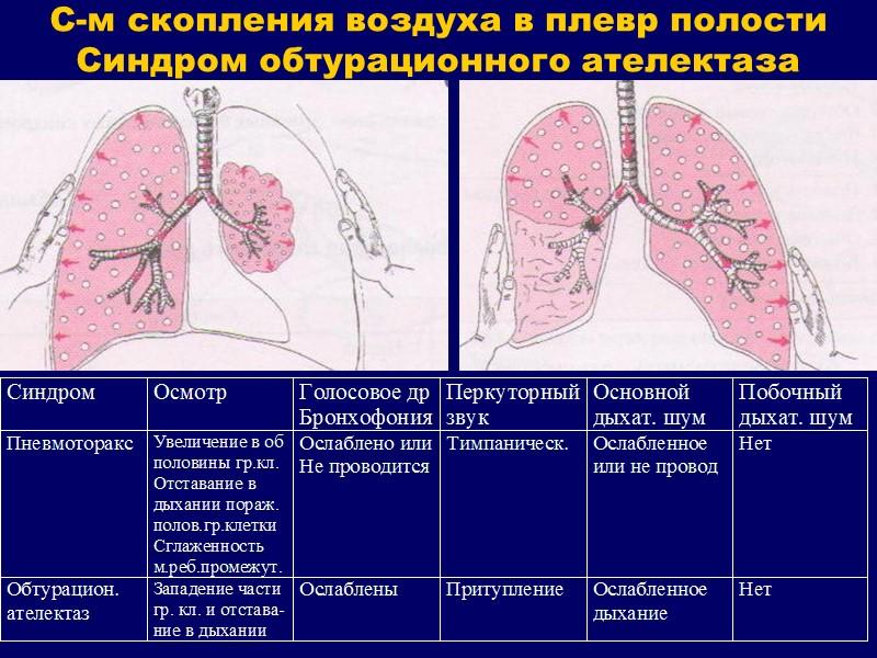 Кривые инспираторной и экспираторной объёмной скорости (петля «поток-объём»)  у здорового человека и А.