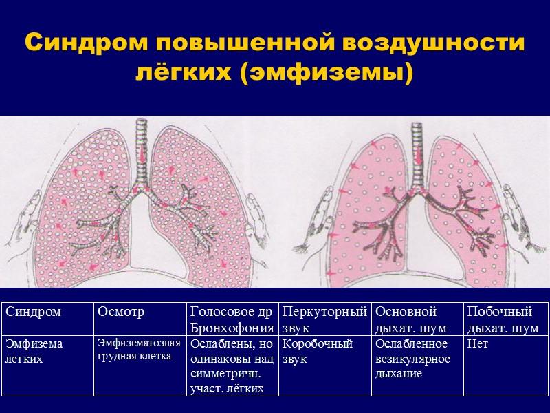 Методы инструментальной диагностики заболеваний органов дыхания Ультразвуковое исследование Магнитно-резонансная томография