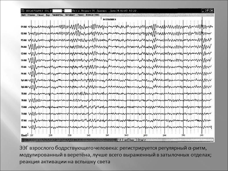 Пневмоэнцефалография.Рентгенологическое исследование желудочков мозга и подпаутинного пространства при помощи введения воздуха в субарахноидальное пространство