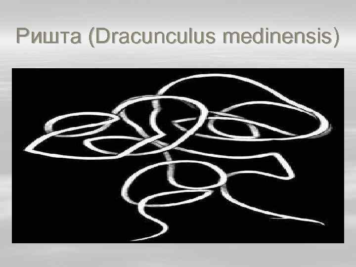 Ришта (Dracunculus medinensis)