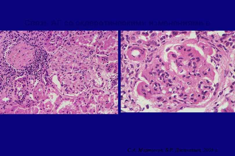 Связь АГ со склеротическими изменениями в биоптате почки С. А. Мартынов, Б. Р. Джаналиев,