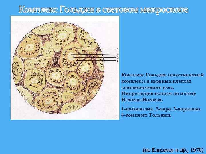 Комплекс Гольджи в световом микроскопе Комплекс Гольджи (пластинчатый комплекс) в нервных клетках спинномозгового узла.