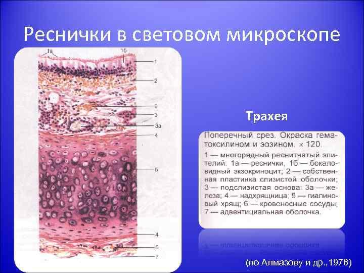 Реснички в световом микроскопе Трахея (по Алмазову и др. , 1978)