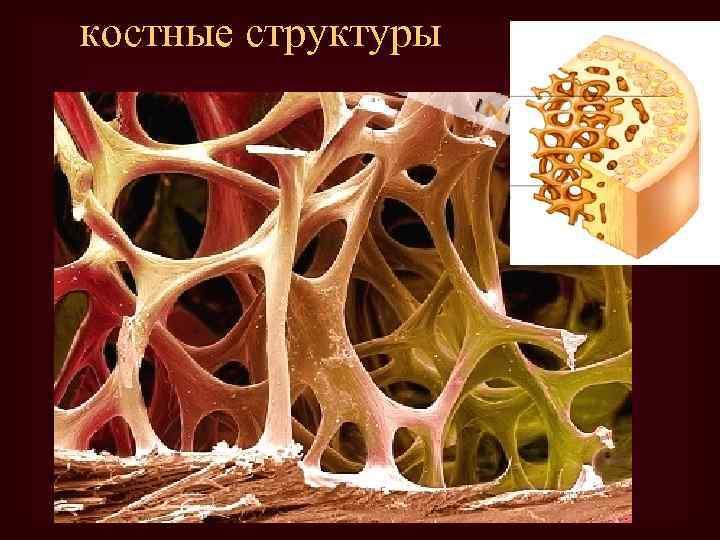 костные структуры