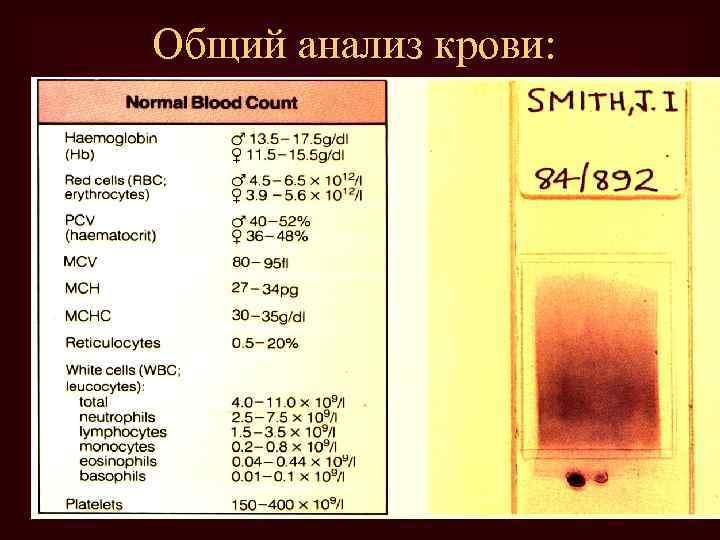 Общий анализ крови: