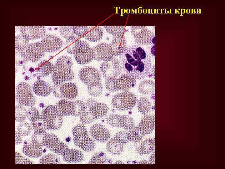 Тромбоциты крови