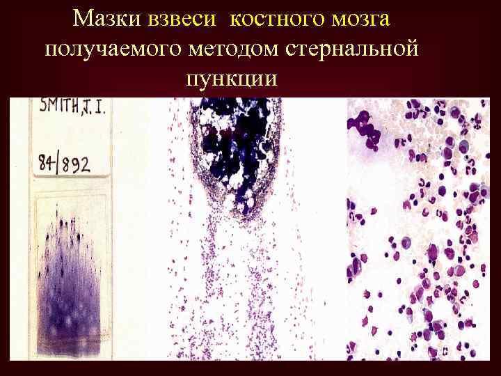 Мазки взвеси костного мозга получаемого методом стернальной пункции