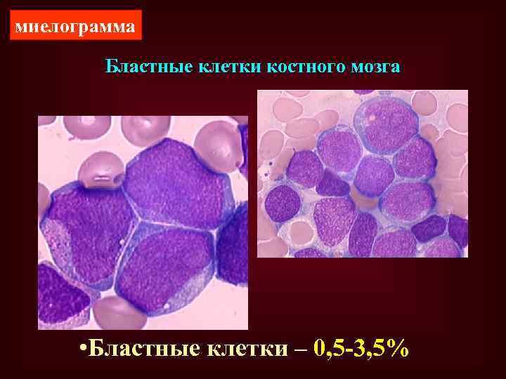 миелограмма Бластные клетки костного мозга • Бластные клетки – 0, 5 -3, 5%