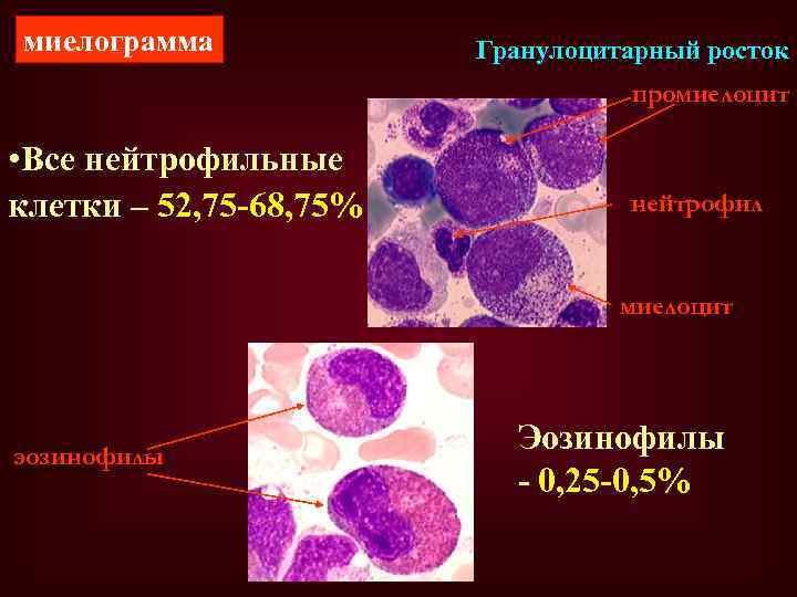 миелограмма Гранулоцитарный росток промиелоцит • Все нейтрофильные клетки – 52, 75 -68, 75% нейтрофил