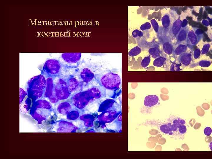 Метастазы рака в костный мозг