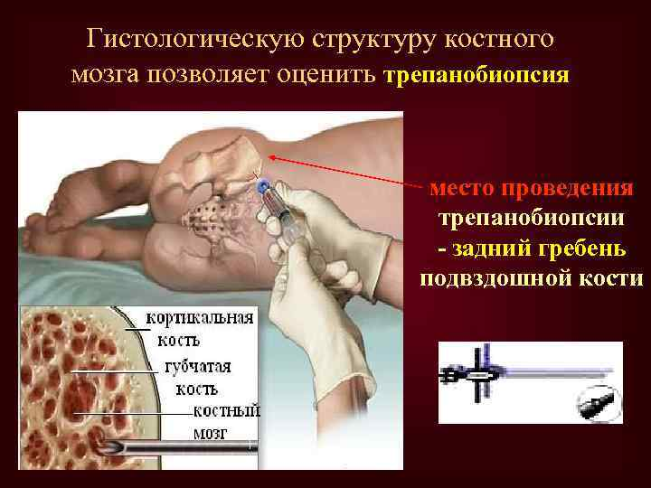 Гистологическую структуру костного мозга позволяет оценить трепанобиопсия место проведения трепанобиопсии - задний гребень подвздошной