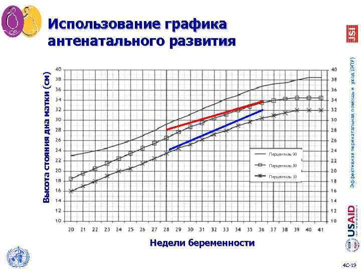 Перцентиль 90 Перцентиль 50 Перцентиль 10 Эффективная перинатальная помощь и уход (ЭПУ) Высота стояния