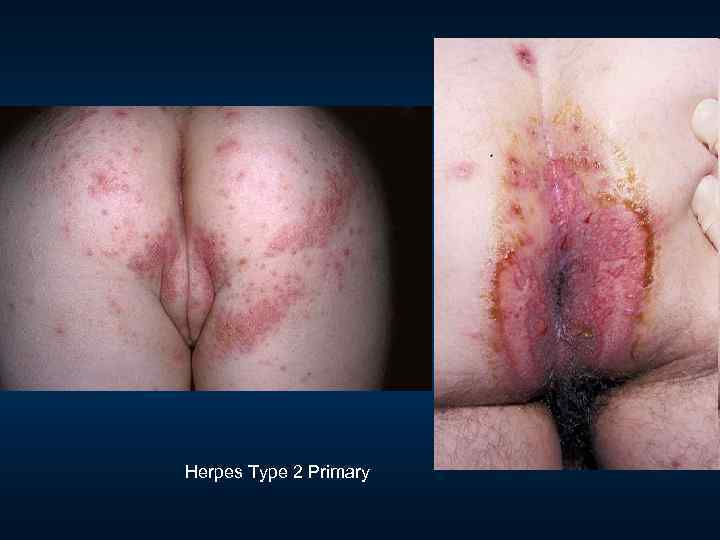 Herpes Type 2 Primary